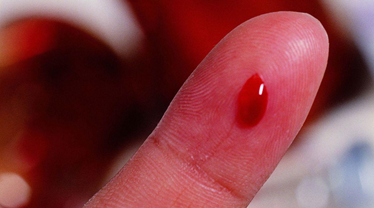 Приворот кровь с пальца кто в москве делает сильнейшие привороты